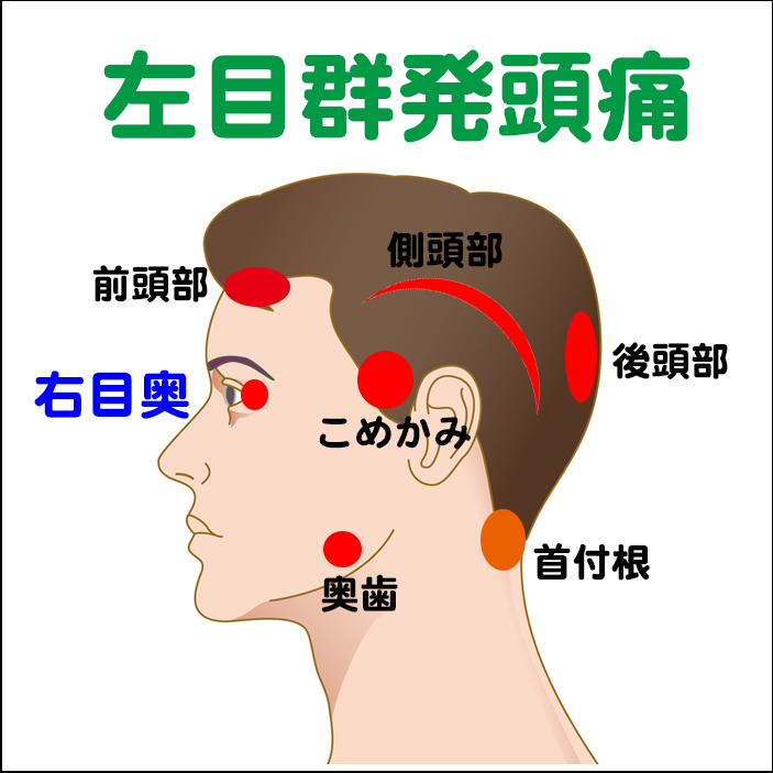 両目の群発頭痛 - 慢性頭痛 難治...